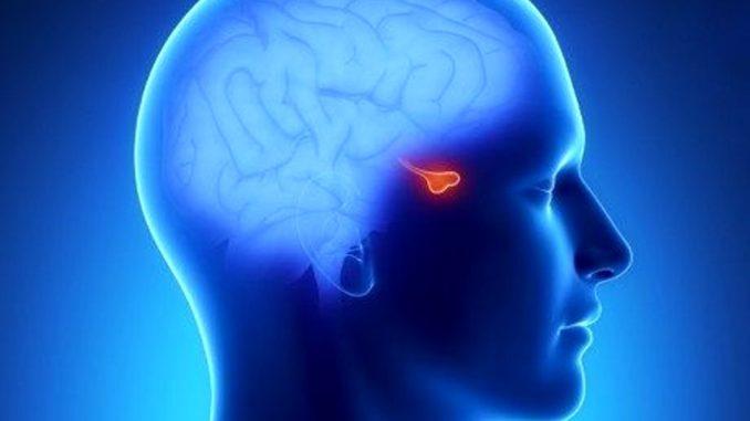 sindrome di cushing