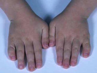 Sindrome di Aarskog-Scott: diagnosi, si può curare?