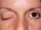 Malattie croniche: miastenia grave, sintomi e diagnosi