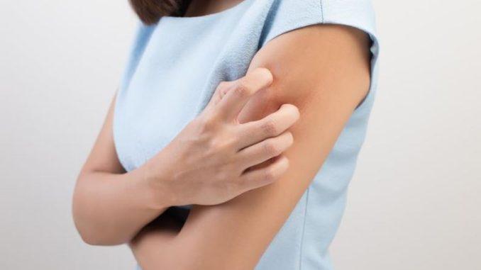 Epidermolisi bollose ereditarie: cosa sono, diagnosi e cura