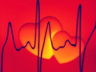 extrasistole cuore